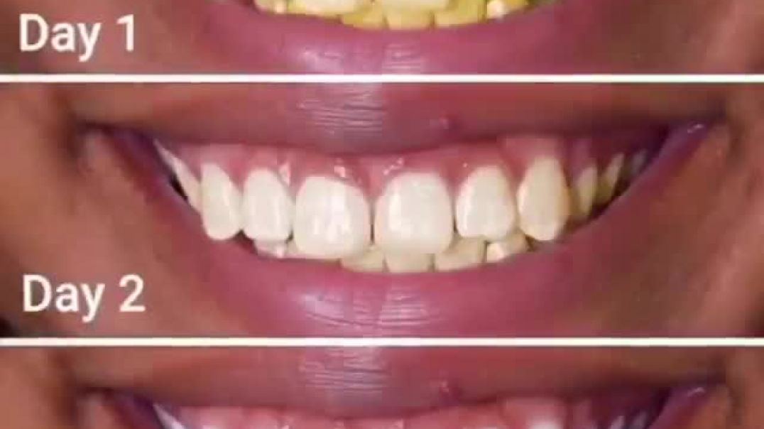 Easiest way to clean a stained teeth